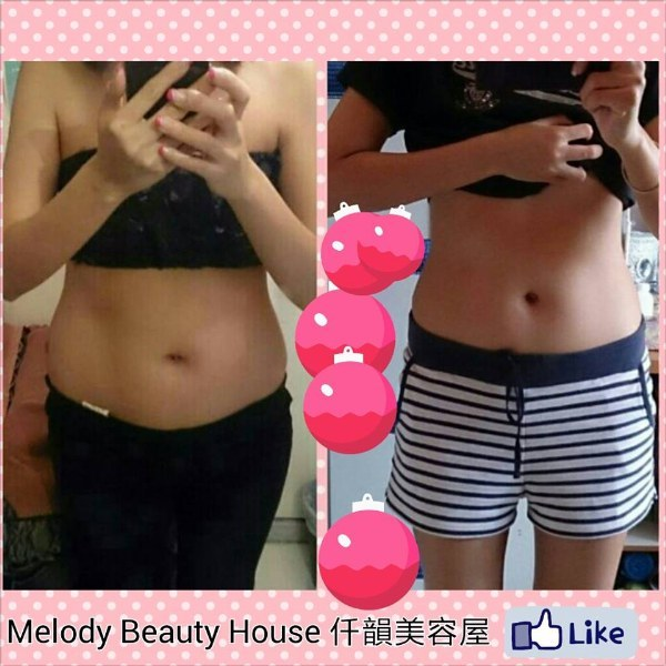 Melody Beauty House仟韻美容屋 Like  pink,day,undergarment,joint,abdomen