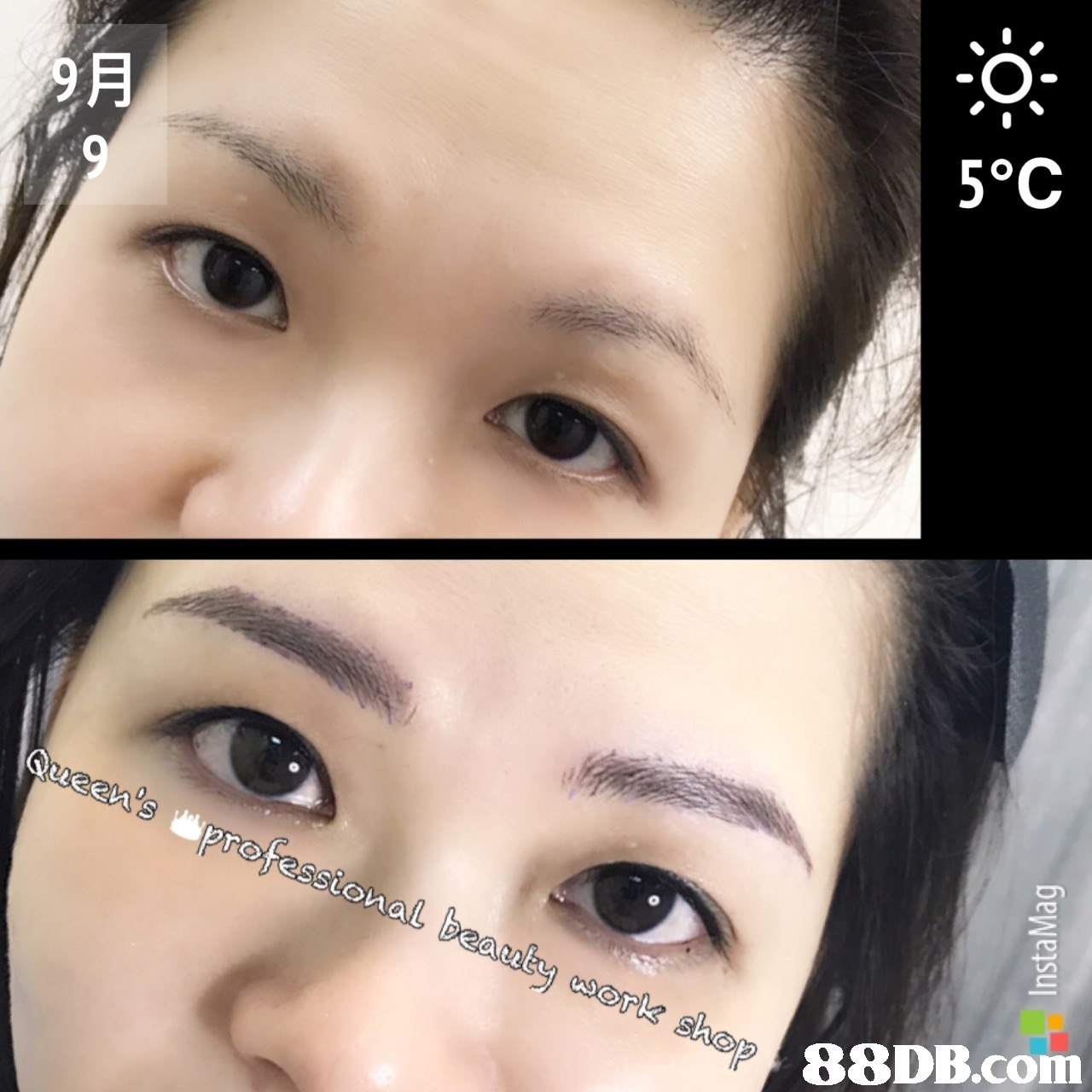 5°C   eyebrow,eyelash,forehead,nose,chin