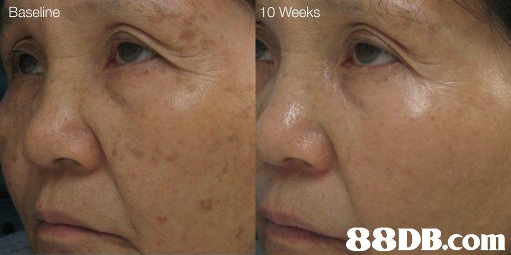 Baseline 10 Weeks   face,cheek,nose,skin,eyebrow
