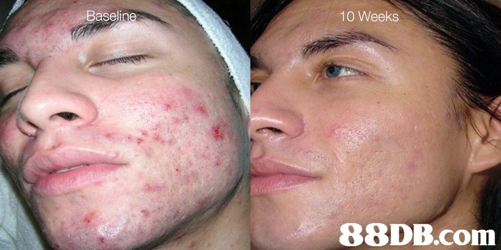 Baseline 10 Weeks   face,cheek,skin,nose,chin
