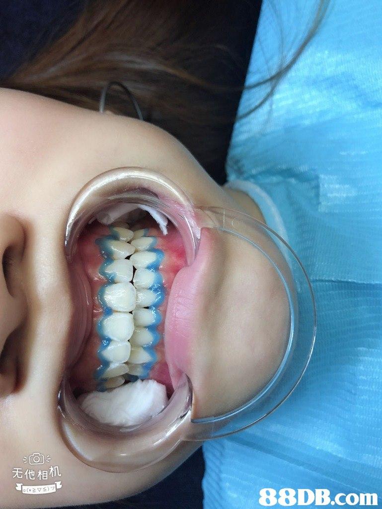 无他相机   jaw,mouth,tooth,service,close up