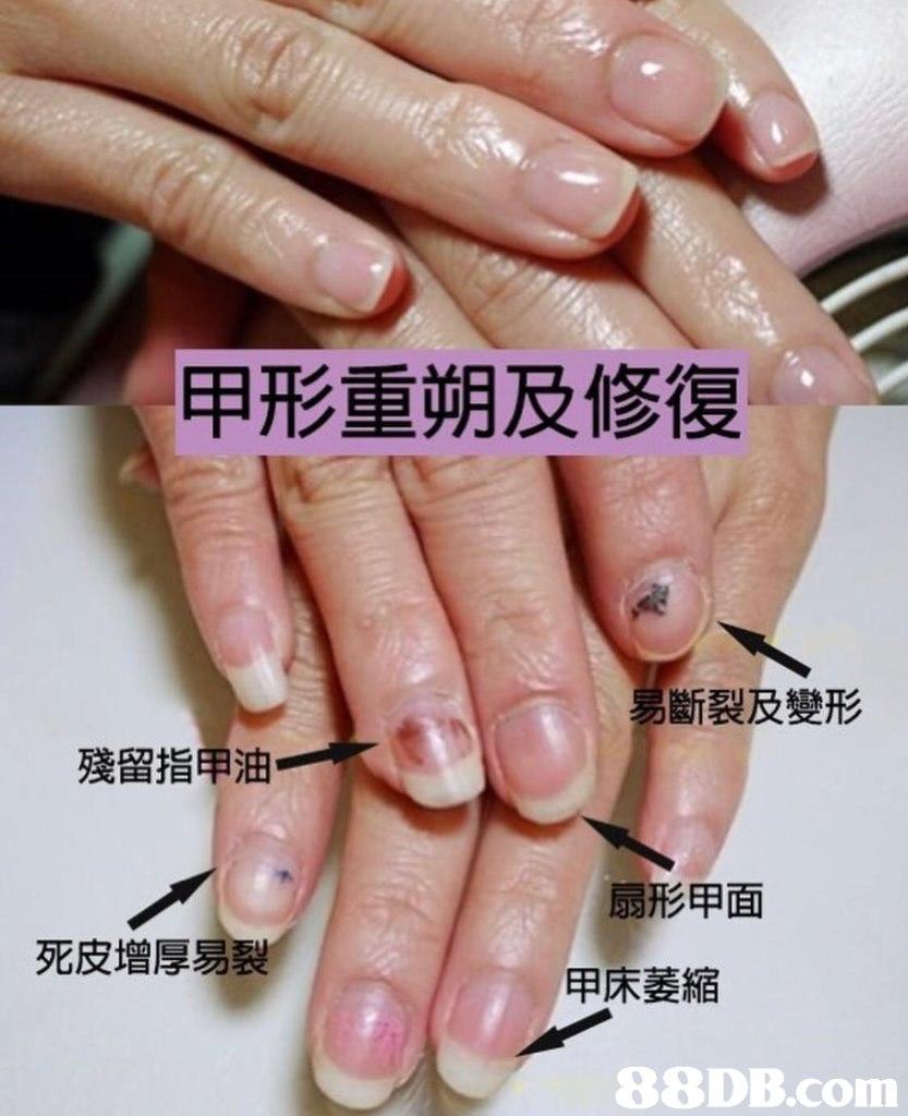 甲形重朔及修復 斷裂及變形 殘留指甲油 扇形甲面 死皮增厚易裂 甲床萎縮   nail,finger,hand,nail care,manicure