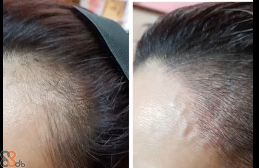 hair,eyebrow,forehead,skin,nose