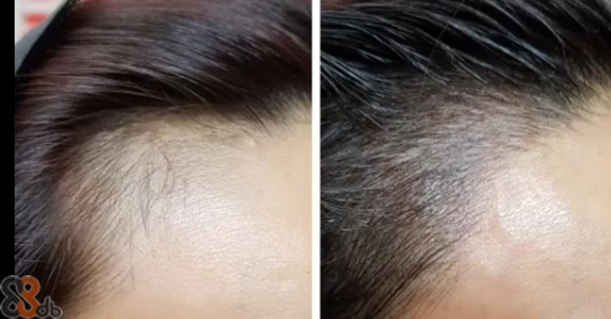 eyebrow,hair,forehead,nose,chin