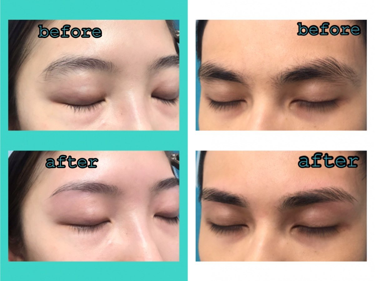 before befose after after  Eyebrow,Face,Skin,Nose,Forehead