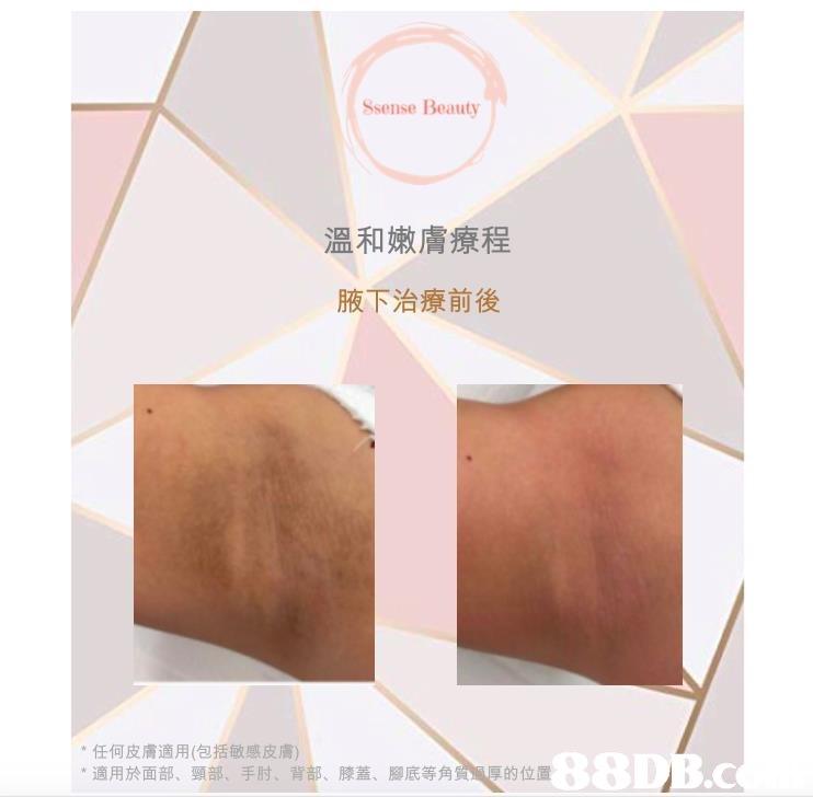 Ssense Beauty 溫和嫩膚療程 腋下治療前後 *任何皮膚適用(包括敏感皮膚) *適用於面部、頸部、手肘、背部、膝蓋、 腳底等角質 厚的位置  Brown,Material property,Paper,