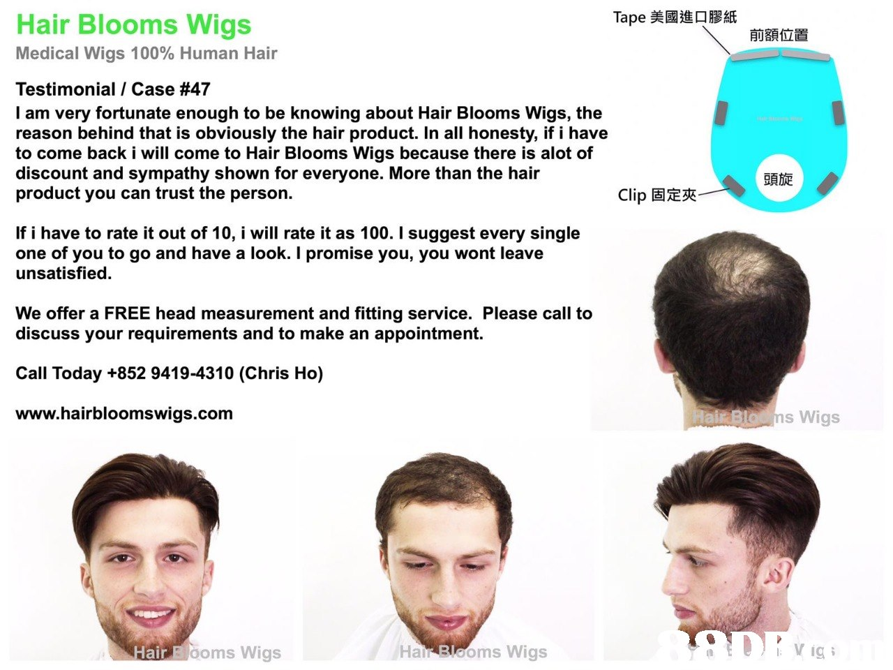 Tape美國進口膠紙 Hair Blooms Wigs 前額位置 Medical Wigs 100% Human Hair Testimonial / Case #47 I am very fortunate enough to be knowing about Hair Blooms Wigs, the reason behind that is obviously the hair product. In all honesty, if i have to come back i will come to Hair Blooms Wigs because there is alot of discount and sympathy shown for everyone. More than the hair product you can trust the person. 頭旋 Clip固定夾 If i have to rate it out of 10, i will rate it as 100. I suggest every single one of you to go and have a look. I promise you, you wont leave unsatisfied. We offer a FREE head measurement and fitting service. Please call to discuss your requirements and to make an appointment. Call Today +852 9419-4310 (Chris Ho) www.hairbloomswigs.com rBlo ms Wigs ai Halr Blooms Wigs HairEO ooms Wigs  Face,Facial expression,Nose,Head,Skin