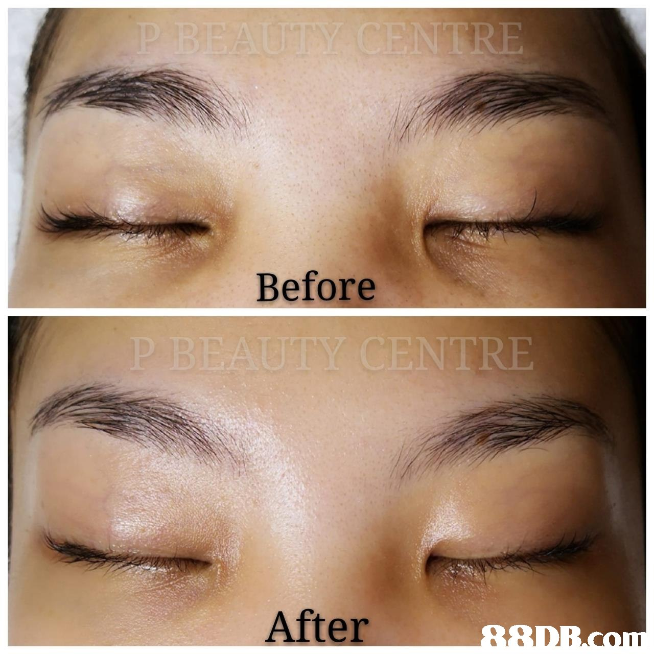 Before NTRE After  Eyebrow,Face,Skin,Forehead,Eyelash