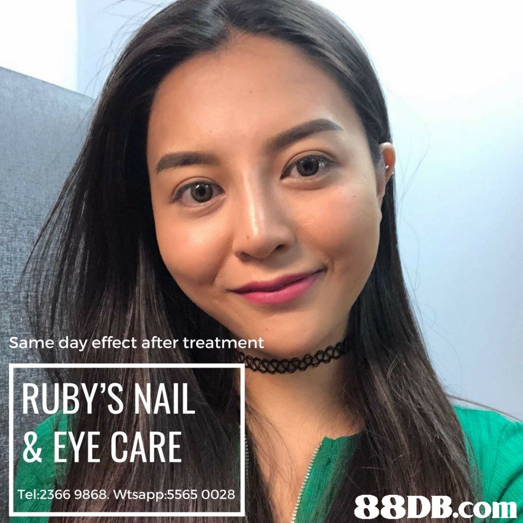 Same day effect after treatment RUBY'S NAIL & EYE CARE Tel:2366 9868. Wtsapp:5565 0028   Hair,Face,Eyebrow,Forehead,Skin