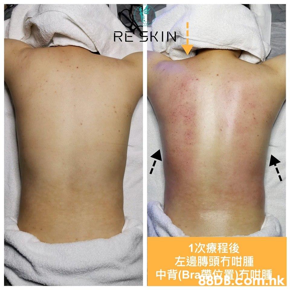 RE 3KIN 1次療程後 左邊膞頭冇咁腫  Skin,Thigh,Leg,Joint,Abdomen