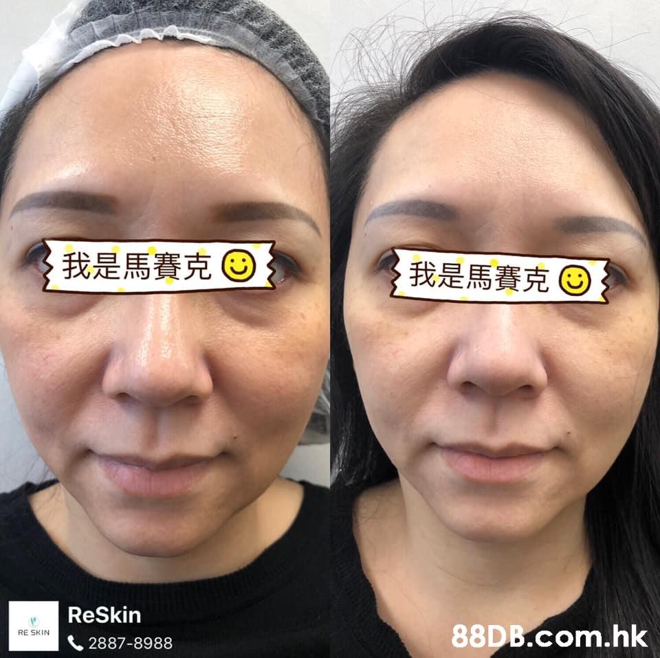 我是馬賽克。 我是馬賽克 ReSkin .hk RE SKIN 2887-8988  Face,Nose,Eyebrow,Skin,Cheek