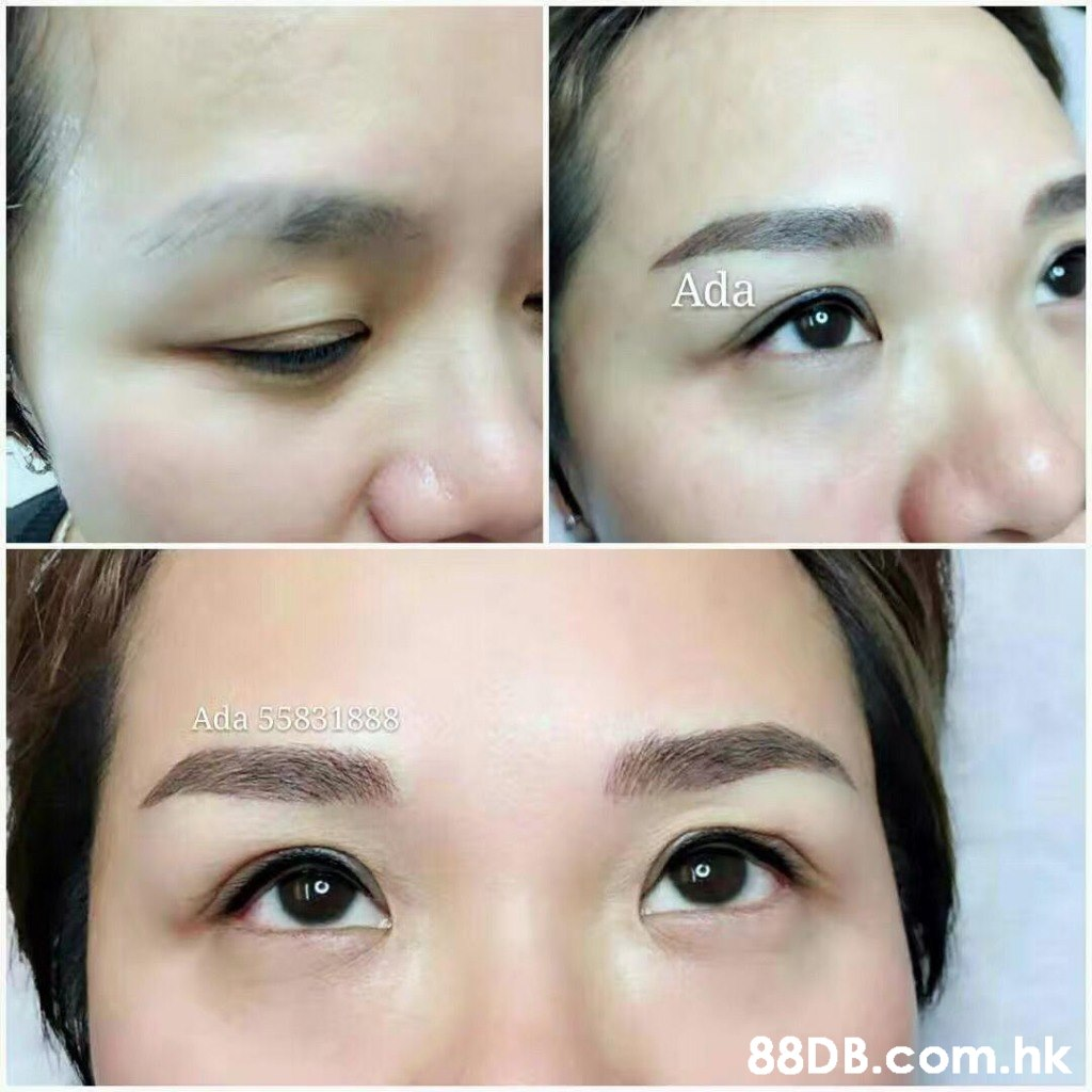 Ada .hk  Eyebrow,Face,Forehead,Nose,Skin