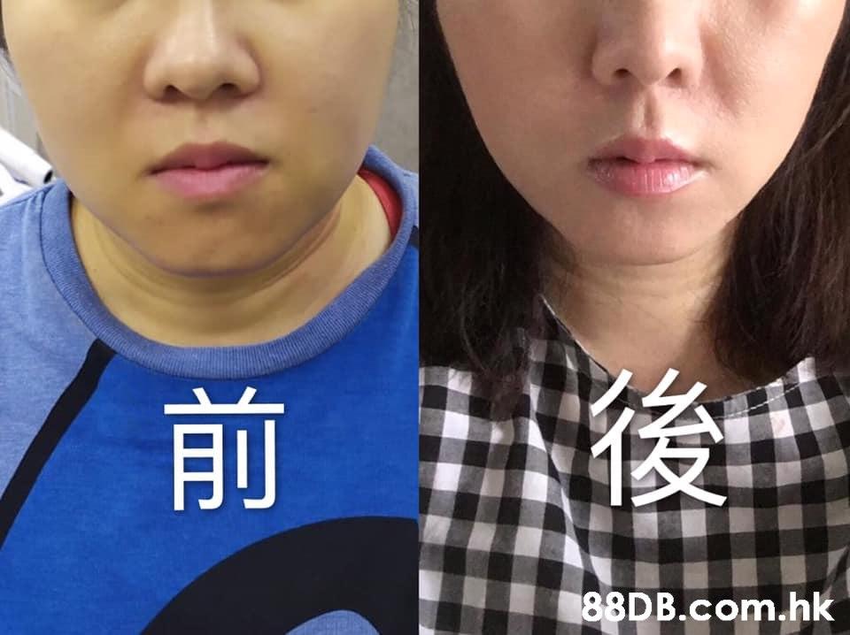 前 .hk  Face,Nose,Lip,Cheek,Chin